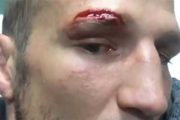 Graphic Photo Tj Dillashaw Suffers Bad Cut Above His Eye During Training